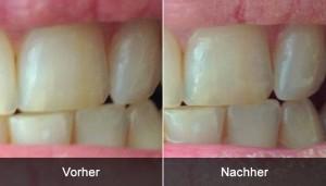 Blend a med 3D White Lux - Vorher/Nachher Vergleichsfoto